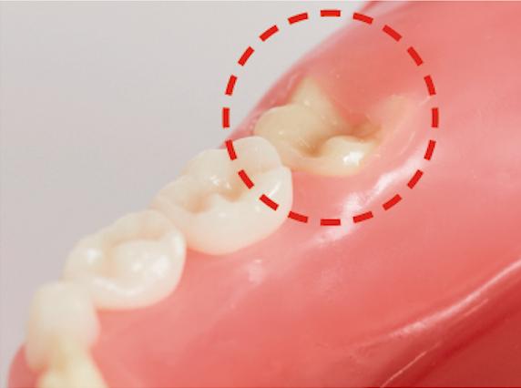 生え変わり期に注意!|子どもの虫歯の原因と歯磨き