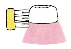 歯ブラシの動かし方|子どもの虫歯の原因と歯磨き
