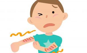 【アレルギー専門医監修】子どものアトピー性皮膚炎、治すには炎症対策がポイント!薬の使い方も