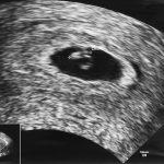 赤ちゃんの心拍が確認できるのはいつ?心拍数の目安や「9週の壁」について医師が解説